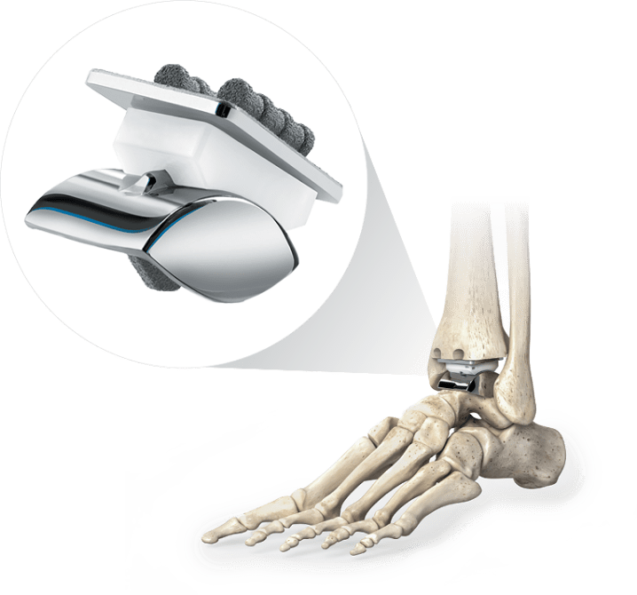 Star total ankle replacement
