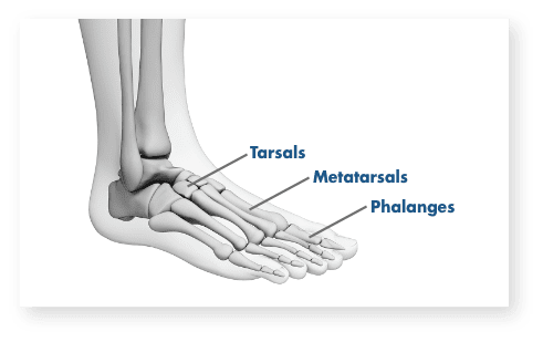 Hurt foot