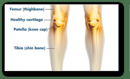 Knee pain chart