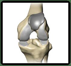 Patellofemoral knee replacement