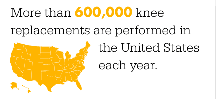 60 k knee replacments