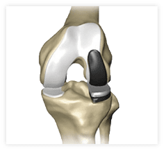Partial Knee Replacement >> What Happens During Partial Knee Replacement Stryker