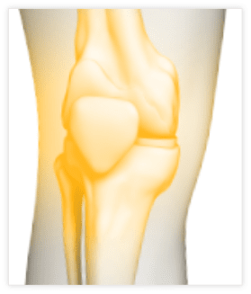 Mako Robotic-Arm Assisted Knee Replacement | Stryker | Stryker