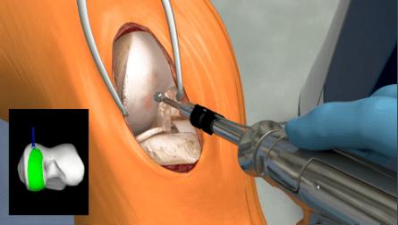 Bone removal