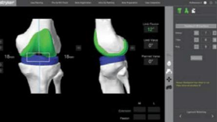 Assess mako knee