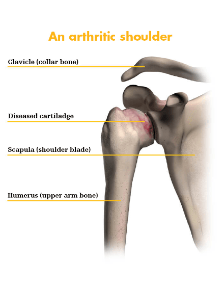 Arthritic shoulder