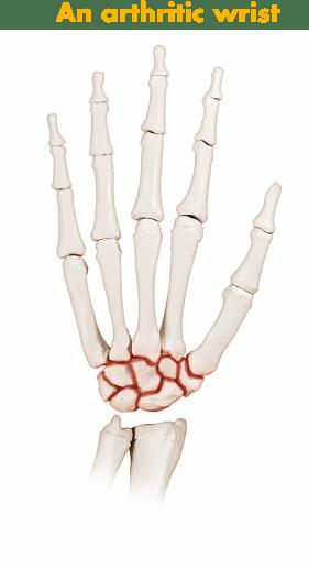 Arthritic wrist hand