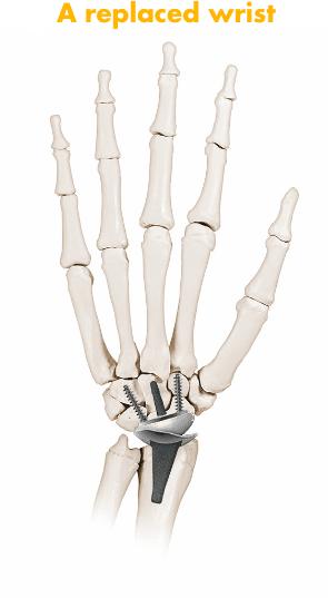 Replaced wrist