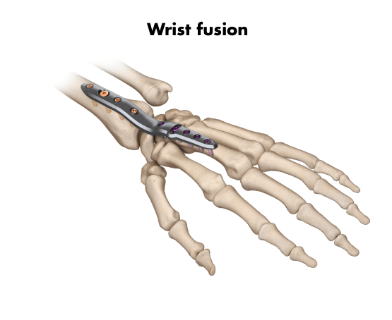 Wrist fusion right